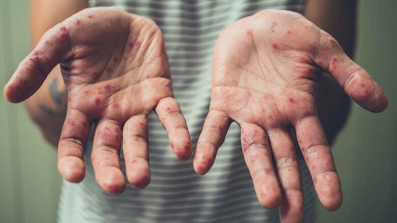 За неделю 19 жителей Сумщины заболели корью