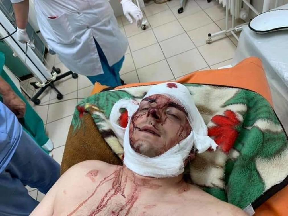 Жорстоко побитого Артема Семеніхіна везуть до Київського інституту нейрохірургії, фото-1