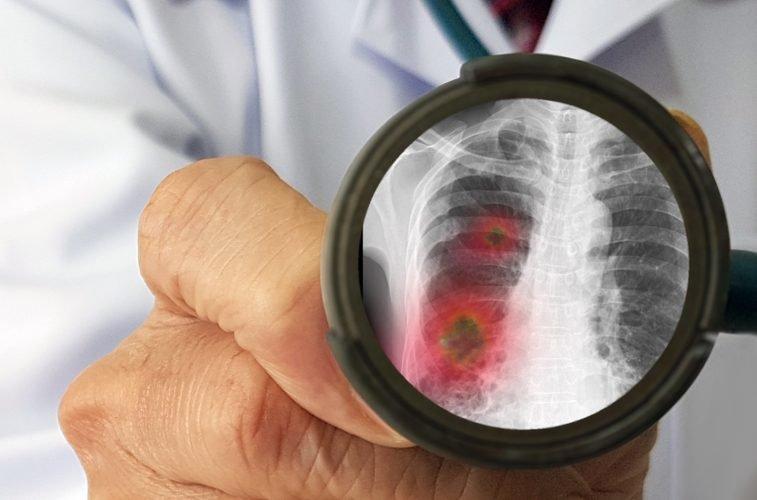 На Сумщині COVID-19 виявили у 6 хворих на пневмонію, фото-1